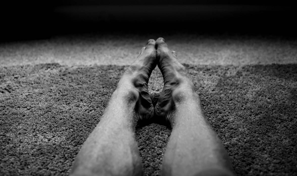 Křečové žíly na nohou muže.